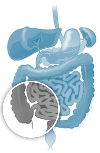 Crohn's disease of the intestine